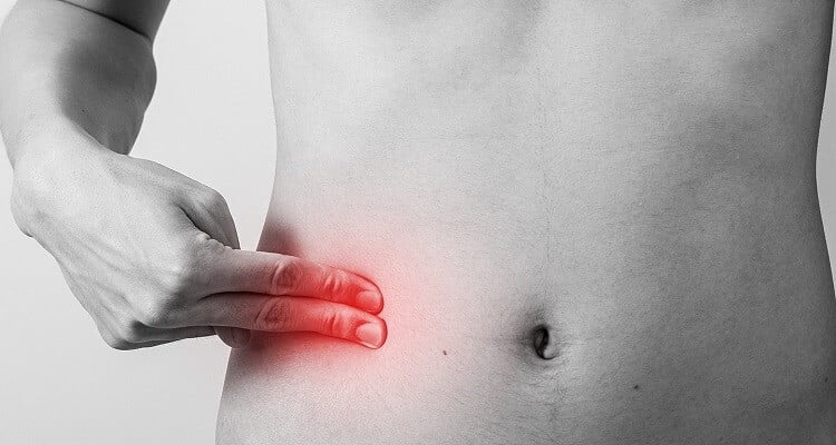 Natural Cures for Appendix Pain